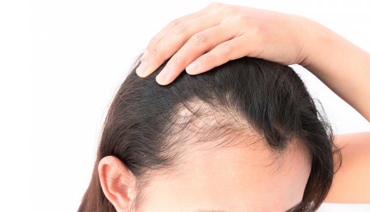 کاشت مو به روش prp؛ مزایا، معایب و روش انجام آن
